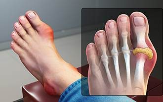 Gout Uric Acid Crystal Foot#
